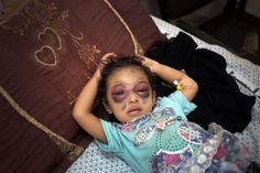 Two year old Nema Abu al-Foul recovers at al-Shifa hospital.  She was injured while playing in front of her family's house in the Al-Sabra neighborhood of Gaza City.  The strike hit a nearby building, and broke her nose and fractured her skull.