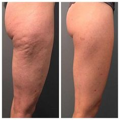 Moreover, you can also establish cellulite if you don't work out adequate or if you do not see what you eat very thoroughly. Food abundant in carbs, fats, and low-fiber food increase fat storage in the body and triggers cellulite. Cellulite Cream, Reduce Cellulite, Anti Cellulite, Orange Peel Skin, Health Ads, Facial Warts, Subcutaneous Tissue, Cellulite Exercises, Cellulite Remedies