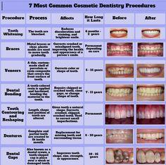 Most Common #Cosmetic #Dentistry Procedures: #Teeth #Whitening, #Veneers, #Dental #Bonding, #Dentures, #Crowns, etc. Dental Assistant Study, Dental Hygiene School, Dental Hygienist, Oral Hygiene, Dental Health, Oral Health, Dental Care, Dental Group, Smile Dental