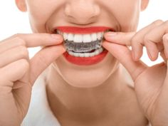 www.randolphnjdentist.com || Why I chose Adult Orthodontic Treatment (and why you should too)
