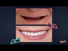 Smile Makeover By Smile Infinity