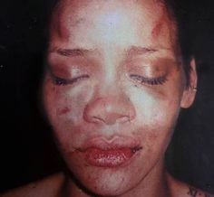 Why doesn't Chris Brown deserve to have Rihanna? it's written all over her face. When Love Hurts, It Hurts, Truth Hurts, Celebrity Photos, Celebrity News, Celebrity Gossip, Chris Brown And Rihanna, Chris Brown Style, Cuts And Bruises