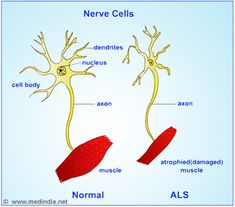Amyotrophic Lateral Sclerosis (ALS)-Lou Gehrig's disease-Symptoms-Diagnosis-Treatment | Medindia