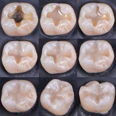 Protésico Dental, Dental Jobs, Dental Hygiene School, Dental Humor, Dental Procedures, Dental Surgery, Dental Health, Dental Assistant Study, Dental Images