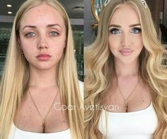 How to give yourself a nose job, cheek fillers, and lip fillers all in one... omfg.