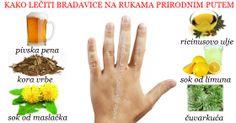 BRADAVICE NA RUKAMA UZROK I LEČENJE Bradavice na rukama,grudima,licu,vratu danas se mogu uklonitiredovnom primenom biljnih preparata već za nekoliko nedelja od tretmana .Bradavica je rožnata izraslina koja se javlja na koži i polusluznicama, a uzrokuje je humani papiloma virus, odnosno neki od 60