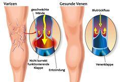 Krampfadern bzw. Varizen sind Venen, die sich aufgrund einer schlechten Durchblutung ausdehnen. Sie werden weiter und sind unter der Haut sichtbar, was nicht unbedingt schön ist. Auch wenn Krampfadern oft chirurgisch entfernt werden können, können diese Behandlungen etwas dauern.