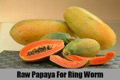 Herbal Remedies To Treat Ringworm