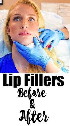 Lip Fillers Before and After- before and after photos of volbella juvaderm lip injections with Atlanta Face and Body Dr. Face Fillers, Dermal Fillers, Gummy Bear Implants, Botox Lips, Cosmetic Fillers, Botox Before And After, Aesthetic Dermatology, Mommy Makeover, Face Scrub Homemade