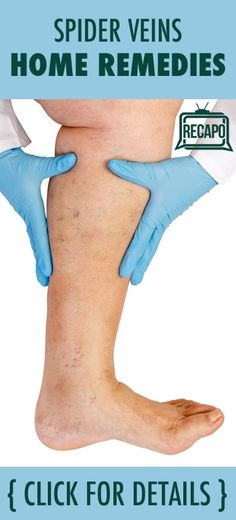 Do you have clusters of red and blue veins popping up everywhere? These are known as Spider Veins, and Dr Oz said that they can make your legs look like a road map. But he wanted to help you learn how to make those veins disappear.
