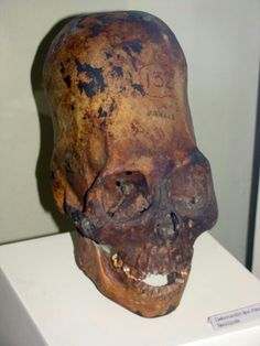 ancient alien visit proof? alien bone structure in skull?