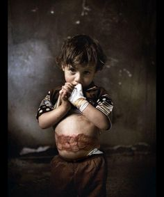 This is Farah (Palestinian). She is 3 years old. Her tiny body was burned by white phosphorus during Operation Cast Lead three years ago. Farah survived miraculously after treatment in Egypt. Unfortunately, her mother did not make it. She died due to infections of her wounds 3 months after the massacre.