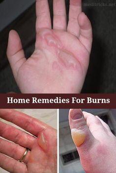 Home Remedies For Burns | Medi Tricks
