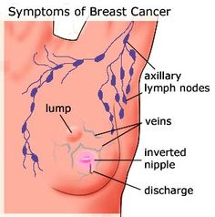 Breast Cancer The Cure | Online bee