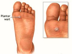 hpv virus foot warts)