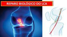 www.cirurgiadejoelho.med.br / O DR. ADRIANO KARPSTEIN, médico ortopedista especialista em Cirurgia de Joelho e Medicina Esportiva, explica sobre o IMPLANTE BIOLÓGICO PARA REPARO DO LCA. #joelho #cirurgiadejoelho