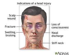 A head injury is any trauma to the scalp, skull, or brain. The injury may be only a minor bump on the skull or a serious brain injury. Head injury can be either closed or open (penetrating). A clos… Head Wound, Nursing Articles, Emergency First Aid, Traumatic Brain Injury, Nursing Students, School Nursing, Cardiac Nursing, Ob Nursing, Pharmacology Nursing