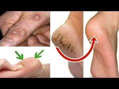 Heel Cracks Hand Foot Calluses And Fungus 2 App .- Topuk Çatlaklarını El Ayak Nasırlarını Ve Mantarlarını 2 Uygulamada Yok … Heel Cracks Hand Foot Foot Calluses And Fungus 2 Application … – # Of Cracks # Of Mushrooms # Nasser of - Perm, Cracked Hands, White Nail Polish, Feet Nails, Moisturizing Shampoo, Feet Care, Fair Skin, Baby Knitting Patterns, Tatoo