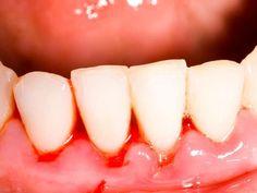 Pernah ludah lepas gosok gigi & berdarah? Perkara biasa? Tidak ini sebabnya Pernah ludah lepas gosok gigi & berdarah? Perkara biasa? Tidak ini sebabnya Selain masalah gigi sensitif masalah gusi berdarah juga sering berlaku dalam kalangan rakyat Malaysia tetapi tidak ramai yang mengambil berat tentang perkara ini. Pernah tak setiap kali korang gosok gigi lepas itu berdarah? Ramai yang menganggap ianya perkara biasa namun sebenarnya sangat merbahaya dan terdedah kepada beberapa jenis penyakit…