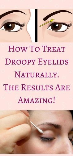 How To Treat Droopy Eyelids Naturally. The Results Are Amazing!