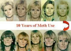 meth mouth pictures before and after | Top 5 Scariest Faces Of Meth Before And After | List Salad