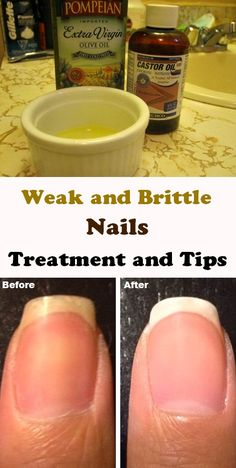 How to get your nails harder and stronger - DIY home remedy for weak and brittle nails