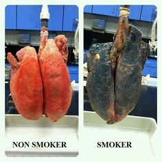 Comparison of healthy lungs and smoker's lungs. However, people who quit smoking can have their lungs return to normal in about years//found by isabella sheehan No Smoking, Help Quit Smoking, Smoking Facts, Smoking Lungs, Smoking Quotes, Flushing Food, Health And Wellness, Health Tips, Health Lessons