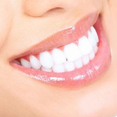 Teeth Whitening Special at http://www.drburch.com/livingsocial.html