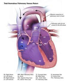 Heart Defects - Facts about TAVPR TAPVR explained - Total Anomalous Pulmonary Venous ReturnTAPVR explained - Total Anomalous Pulmonary Venous Return Cardiac Sonography, Atrial Septal Defect, Heart Structure, Cardiac Catheterization, Cardiac Nursing, Critical Care Nursing, Congenital Heart Defect, Medical Anatomy, Nursing Notes