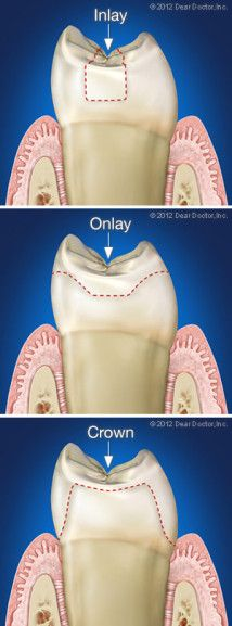 In dentistry, an inlay is an indirect restoration consisting of a solid substance fitted to a cavity in a tooth and cemented into place. An onlay is the same as an inlay, except that it extends to replace a cusp. Crowns are onlays which completely cover all surfaces of a tooth. Don't hesitate to make an appointment with our Lake Worth Dentist today!