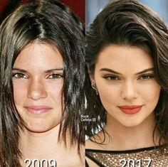 Kardashian Plastic Surgery, In Cosmetics, Lip Augmentation, Medical Spa, Bad Girl Aesthetic, Laser Hair Removal, San Diego, Hair Makeup, Schedule