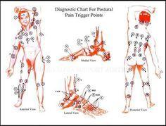 Yes...it hurts EVERYWHERE!  Fibromyalgia