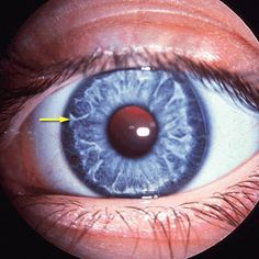 Alagille Syndrome. Possible ocular findings: posterior embryotoxin, deep set eyes, jaundiced eyes, chorioretinal atrophy and pigment clumping. See power point at http://www.docstoc.com/docs/72595494/Alagille-Syndrome