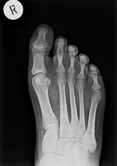 Sesamoid fracture