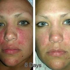 In no time FLAT! #Nerium  Become a preferred customer and I'll show you how to get your product for free.  www.life.nerium.com  and find me on FB for a FREE SAMPLE!! www.facebook.com/jenamoe