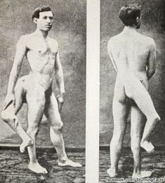 """Frank Lentini, born with the proverbial & much desired """"leg up"""", excelled in all his future endeavors, and had the added distinction of never having lost a three-legged race, for which he gained much notoriety and acclaim."""