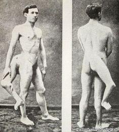 Francesco (Frank) A. Lentini, l'homme aux trois jambes.