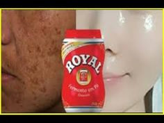 YouTube Remover Manchas, Tips Belleza, How To Remove, How To Make, Drink Sleeves, Health And Beauty, 3 D, Skin Care, Youtube