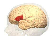 Afasia – Definición, causas, tipos, síntomas, tratamiento