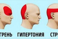 За 5 минут избавиться от головной боли без таблеток? Это просто! - Jemchyjinka.ru