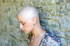 Living with Cancer: Grieving Your Losses Along the Way Donating Hair, Bucket List Before I Die, Bald Women, Feminine Hygiene, Brain Tumor, Cancer Cure, Cancer Cells, Colon Cancer, Arthritis