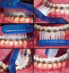 #Brushing with braces, use a #orthodontictoothbrush first and follow the technique shown in picture. Then use a #interdentalbrush to clean between brackets and below wire
