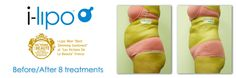 i lipo before and after as produced by chromogenex