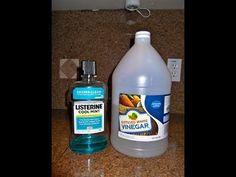 Listerine & Vinegar Foot Soak Recipe for Toenail Fungus, Dead Skin, Calluses, Dry & Cracked Heels - Toenail Fungus Treatment, Foot Soak Vinegar, Listerine Cool Mint, Foot Soak Recipe, Diy Foot Soak, Toenail Fungus Remedies, Dead Skin, Toe Nails, Health