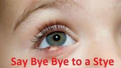 Get rid of a stye. Treat a stye overnight. Best ways to get rid of stye fast. Natural ways to treat stye at home. Home remedies to get rid of a stye. Pimples Under The Skin, How To Get Rid Of Pimples, Anti Aging, Eye Stye Remedies, Pimples On Buttocks, Overnight Acne Remedies, Clear Skin Tips, Acne Prone Skin