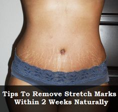 Home Remedies to Get Rid of Stretch Marks - Tips to Remove Stretch Marks Within 2 Weeks Naturally