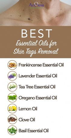 Best Essential Oils for Skin Tags Removal By using essential oils, you can remove skin tags. There are different essential oils that have proven to be quite an effective remedy for skin tags. Discover the best essential oils for removing skin tags. Oregano Essential Oil, Essential Oils For Skin, Frankincense Essential Oil, Tea Tree Essential Oil, Natural Remedies For Arthritis, Cold Home Remedies, Natural Remedies For Anxiety, Natural Cures, Natural Healing