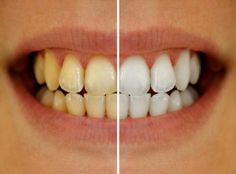 Natural Teeth Whitening Remedies The Top 9 Natural Home Remedies For Yellow Teeth That Won't Destroy Your Enamel Toenail Fungus Treatment, Nail Treatment, Teeth Whitening Remedies, Natural Teeth Whitening, Whitening Kit, Skin Whitening, Tooth Enamel, Allergies