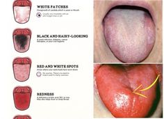 What Your Tongue Can Tell You About Your Health? Did you know the strongest muscle in the human body is the tongue? The tongue manipulates food for White Tongue Causes, Red Tongue, Foot Detox Soak, Tongue Health, Healthy Tongue, Healthy Teeth, Cleaning Your Colon, Cleaning Tips, Nursing