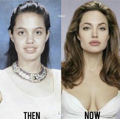 Look at this beautiful celebrity transformation! Avalon Laser helps all of our patients look more beautiful with age. Any guesses on what cosmetic surgeries she had done?